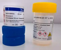 klessidra-formol-2.0