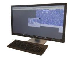 escaner-manual-portas-microvisionner